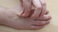 Kůže na ruce